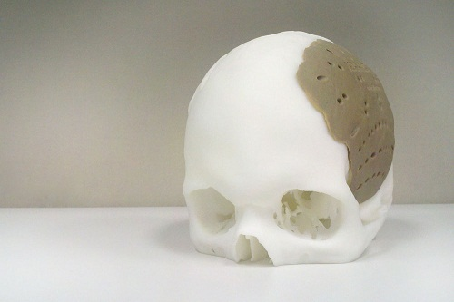 3D-cranial-device